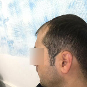 Hair Istanbul Clinic - Hair Transplant Turkey Reviews Best Cost | Sapphire FUE DHI & Dr.Erkam CAYMAZ 5 star review on 5th July 2020