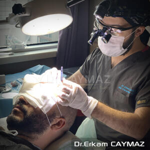 Hair Upload Clinic - Hair Transplant Turkey Istanbul Reviews Best Cost | Sapphire FUE DHI & Dr.Erkam 5 star review on 4th January 2021