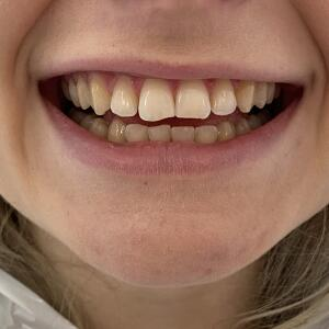The Harley Street Smile Clinic 5 star review on 7th September 2020