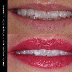 Oral Design Implant and Aesthetic Clinic 5 star review on 20th June 2017
