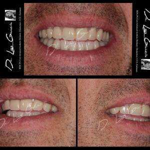 Oral Design Implant and Aesthetic Clinic 5 star review on 28th June 2017