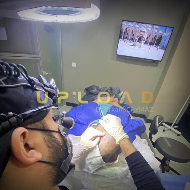 Hair Upload Clinic - Hair Transplant Turkey Istanbul Reviews Best Cost | Sapphire FUE DHI & Dr.Erkam 5 star review on 17th September 2019
